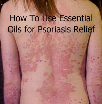 Using Essential Oils for Psoriasis Relief
