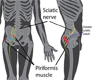 Piriformis Muscle in Relation to Sciatic Nerve | Massage For Piriformis Syndrome