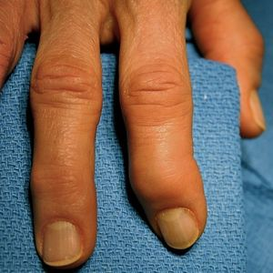 Arthritic Fingers | Using Essential Oils and Aromatherapy for Arthritis