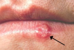 Cold Sore on Lip