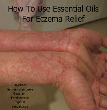 Using Essential Oils for Eczema Relief