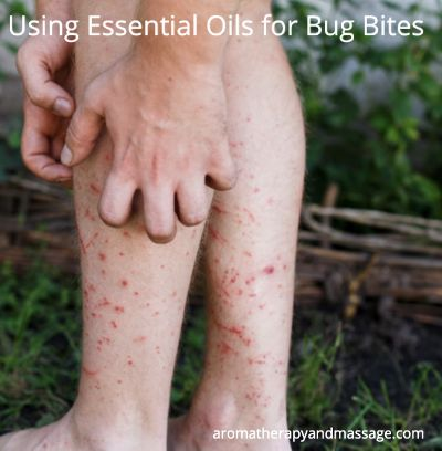 Person scratching leg covered with insect bites   Essential Oils for Bug Bites