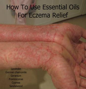 Using Essential Oils for Eczema Relief