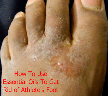 Athlete's Foot | Using Essential Oils for Foot Fungus