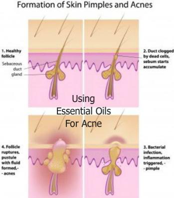 Using Essential Oils for Acne