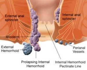 Ilustration of Hemorrhoid - Essential Oils for Hemorrhoids