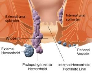Ilustration of Hemorrhoid - Essential Oils for Hemorrhoids