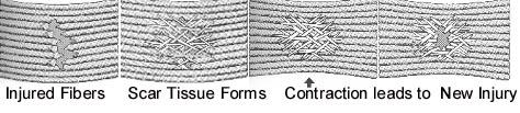 Injured soft tissue fibers