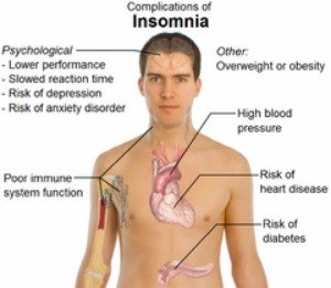 Chart showing complications of insomnia | Insomnia Relief