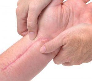 Massaging Scar on Arm
